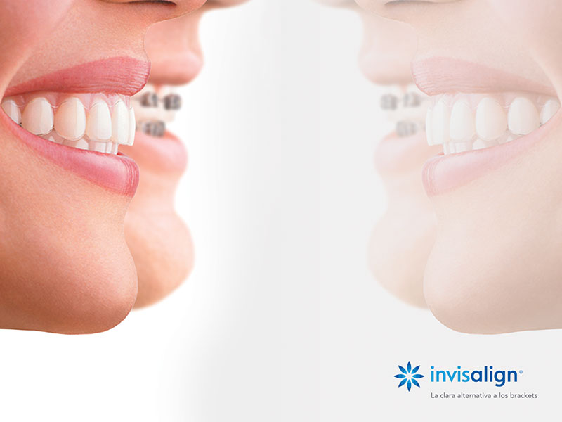 Invisalign Open Day